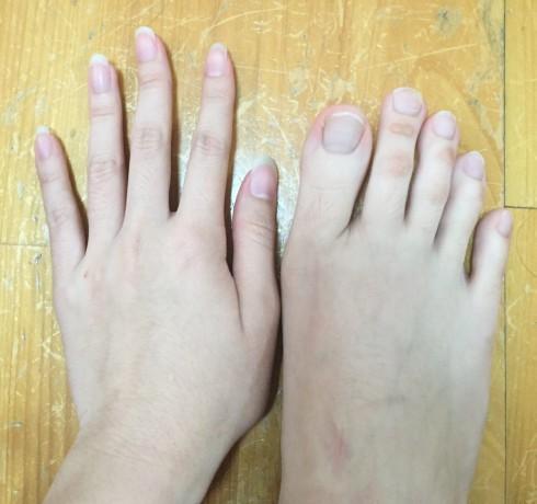 Очень длинные пальцы на ногах