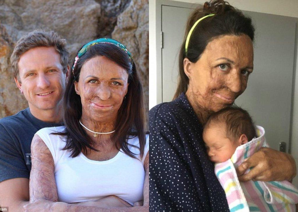 Полностью обгоревшая при пожаре Турия Питт родила ребенка — фото