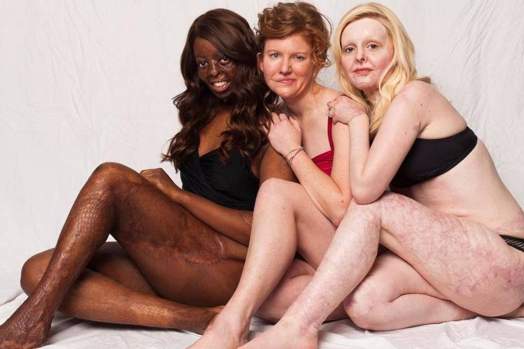 Новая кампания призывает людей с изъянами внешности любит свои шрамы